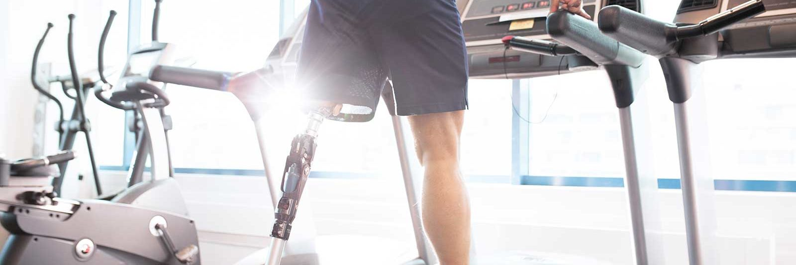 Amputee with Prothetic Leg on Treadmill